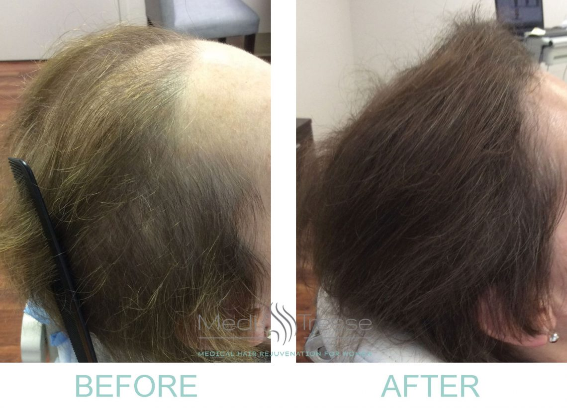 Platelet Rich Plasma Prp Therapy For Hair Loss Wellesley Boston Ma