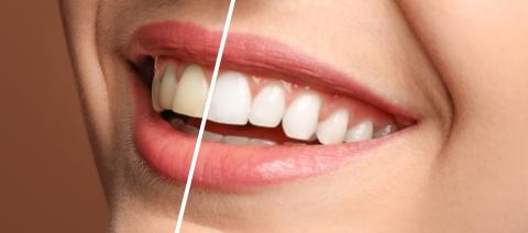 Teeth Whitening Kits In Orleans