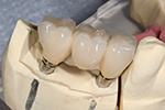 Implant Supported Dental Bridges