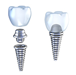 Implant Supported Dental Crowns