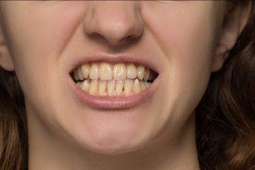 a person showing their teeth