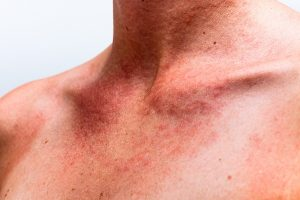 Adult Skin Disorders: Genetic Photosensitivity Disorders