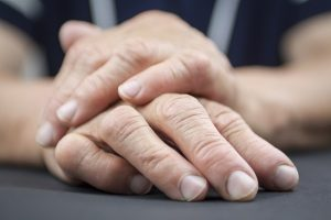 I Have Rheumatoid Arthritis - Am I Entitled To Disability Benefits? Qualifying Through A Medical Vocational Allowance