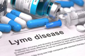 I Have Lyme Disease - Am I Entitled To Disability Benefits?  Part 2: Qualifying Under A Listing