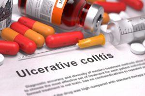 I Have Ulcerative Colitis - Am I Entitled To Disability Benefits? Part 2: Qualifying