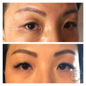 Plasma lift/Fibroblast at Intl  School of Permanent Makeup