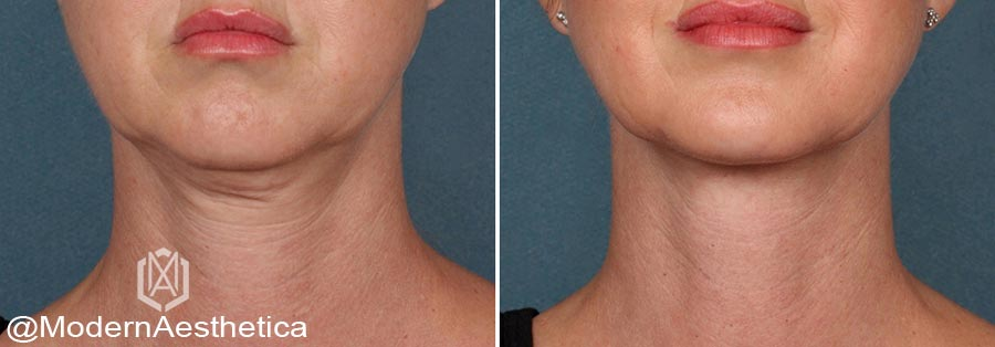 Why Should You Get A PDO Thread Lift - Learn More About Our