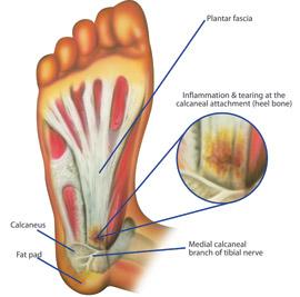 plantarfasciitis