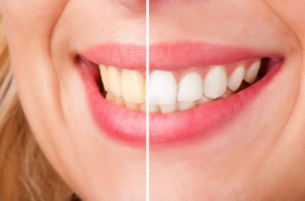 Is Teeth Whitening Safe For You?