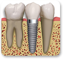 An example root implant
