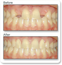 Before and after dental surgery