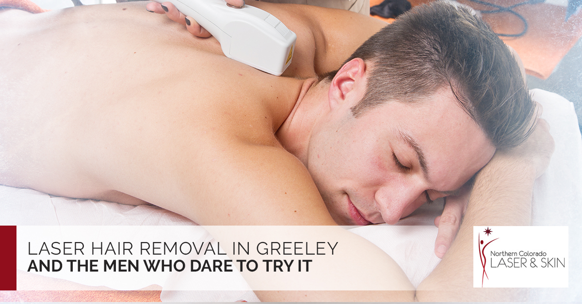 Laser Hair Removal in Greeley and the Men Who Dare to Try It