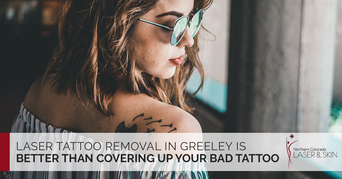 Laser Tattoo Removal Greeley: Ways To Hide Your Bad Tattoo