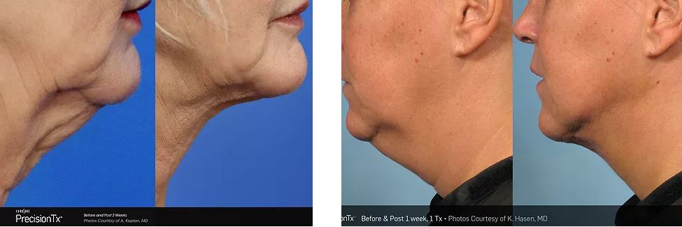 Non-Surgical Facelift | Precision Tx Skin Tightening | Nuderma Health