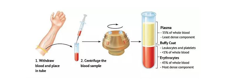 Platelet Rich Plasma (PRP) Injection Therapy Treatment | Nuderma Health