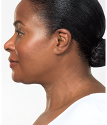 KYBELLA® Treatments & KYBELLA® Side Effects | Nuderma Health