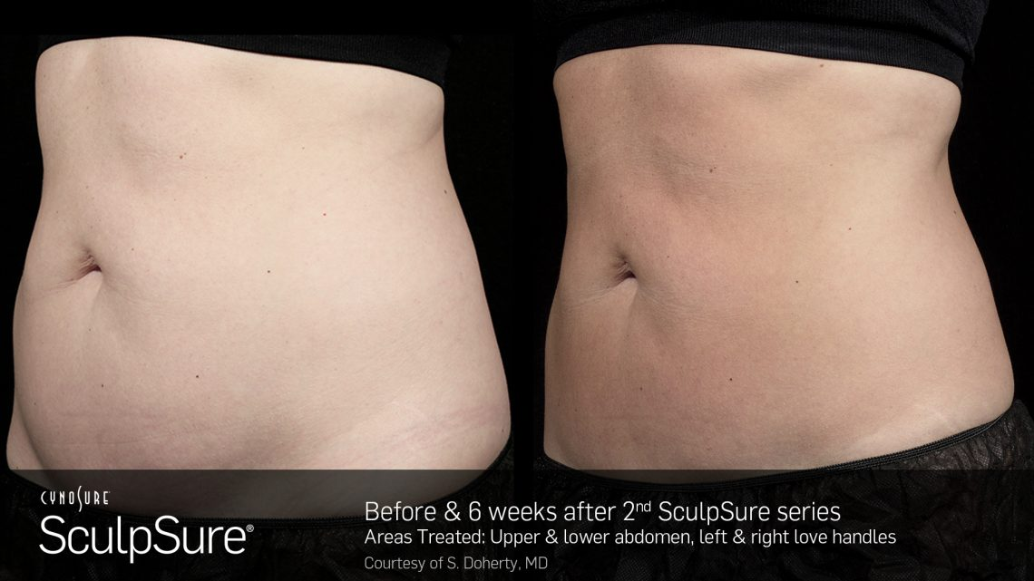 SculpSure® Non-Surgical Body Contouring in Raleigh | Nuderma Health