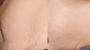 Laser Skin Resurfacing Side Effects in Raleigh | Nuderma Health