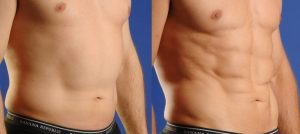 Smartlipo Triplex & Laser Lipo in Raleigh | Nuderma Health & Med Spa