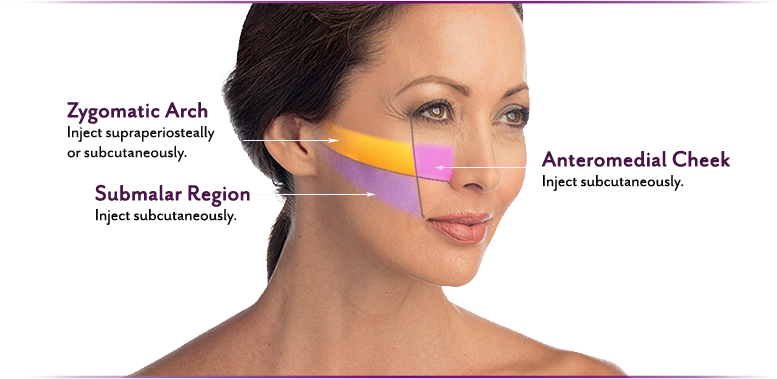 Juvederm® Volume Xc Cost in Raleigh | Nuderma Health