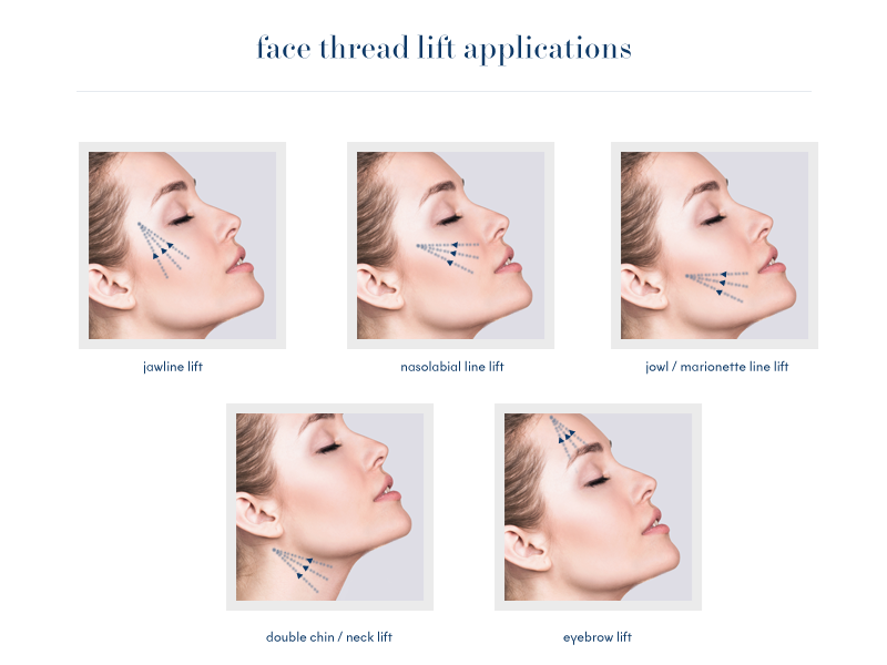 Non-Surgical Facelift | Nuderma Health and Medical Spa