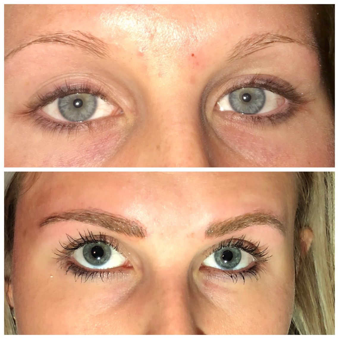 Microblading Eyebrows Benefits & Treatment | Nuderma Health