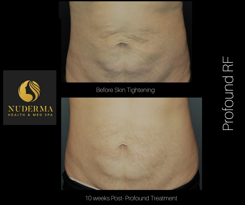 Profound RF Skin Tightening & Restoration Treatment | Nuderma Health