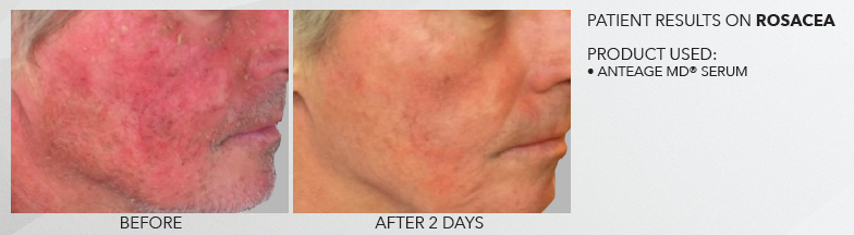 Rosacea before and after with AnteAGE home skin care system
