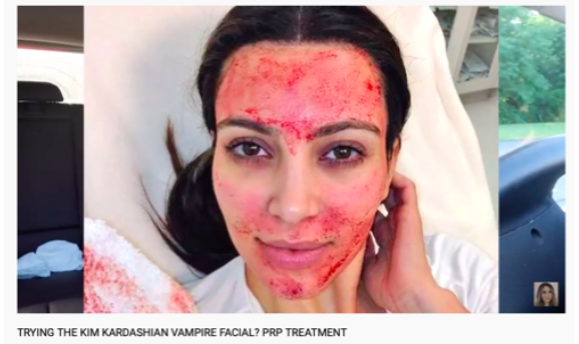 Read this post to find out why you should not do Vampire PRP facials.