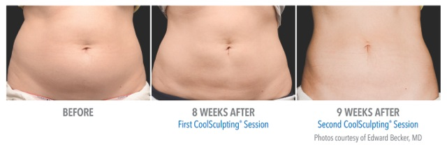 Get the body you want with Coolsculpting in Nashville!