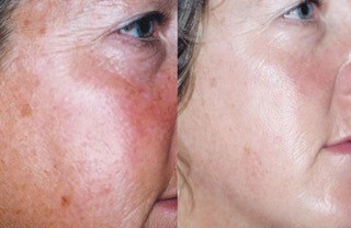 See the effects of diamond infused skin care in Nashville!