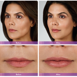 Before & after photos of lip injectables