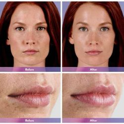 Before & after photos of women's lips