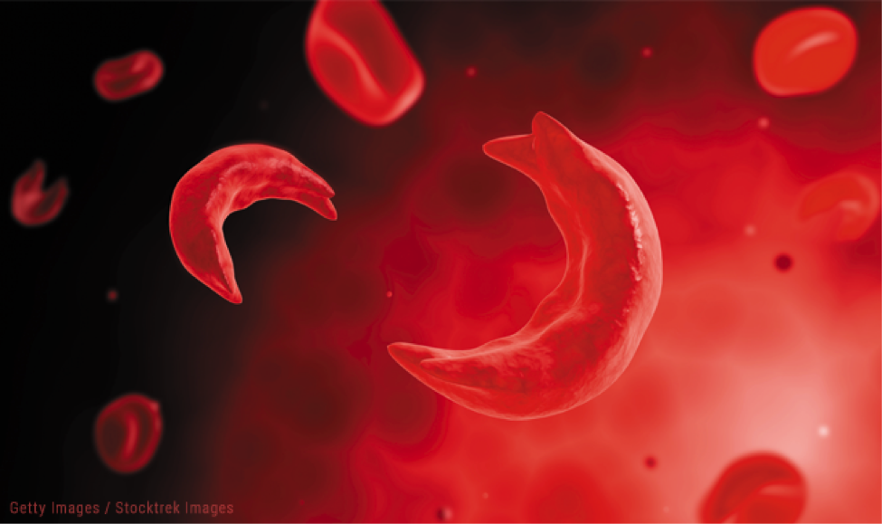 Sickle cell disease and dating