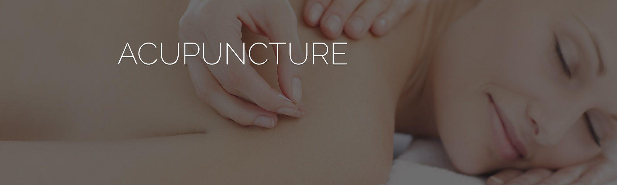 acupuncture-keller-tx