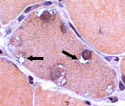 Vacuoles within muscle fiber