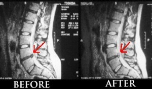 spinal-decompression-before-and-after1-300x175
