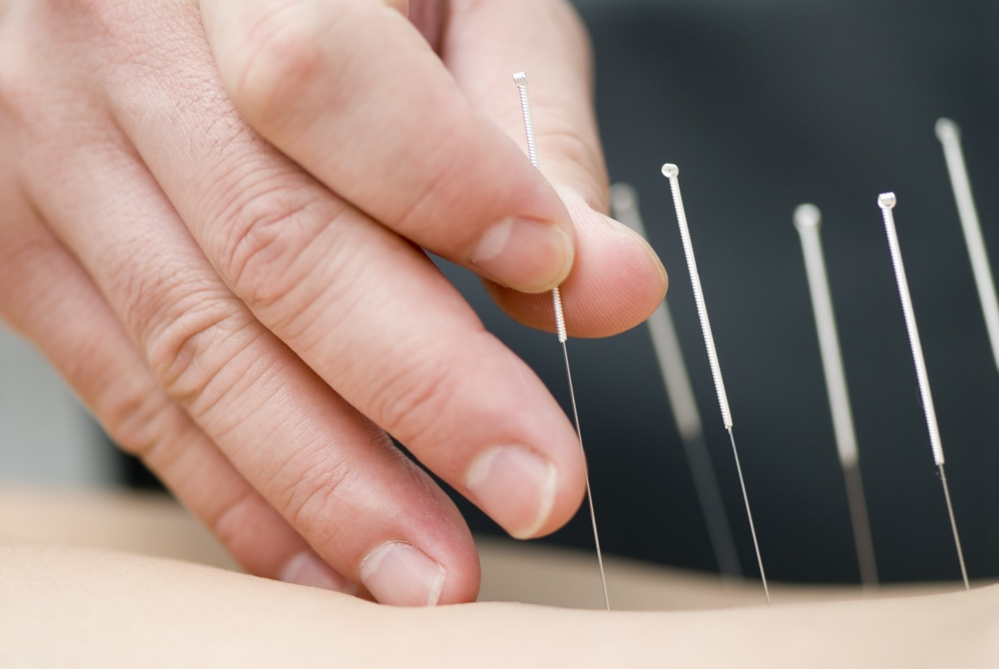 Acupuncture needles being applied to skin
