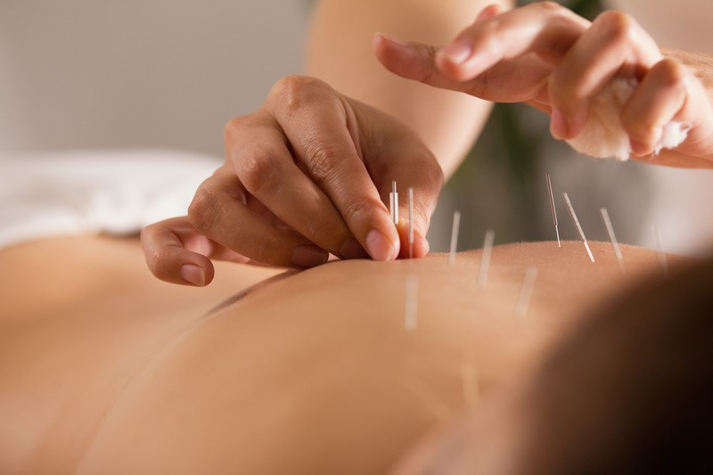 Acupuncture treatment for Crohns