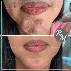 Botox Chin