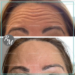 botox,forehead,before and after