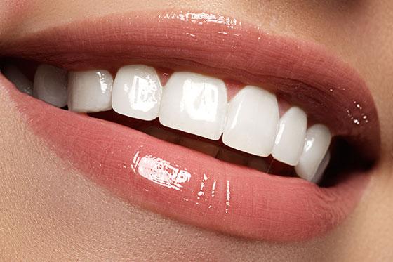 teethwhiteningpic