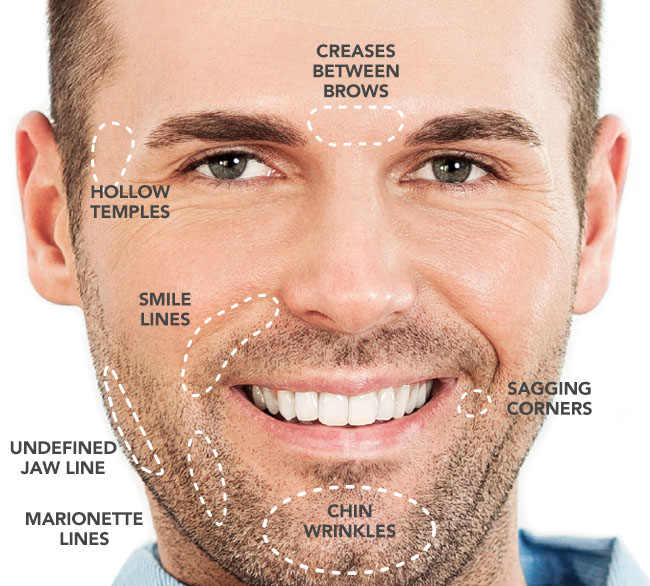 Wrinkle Filler Wheeling - Fill In Deep Wrinkles
