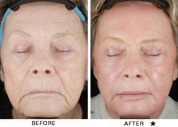 Pittsburgh facial rejuvenation