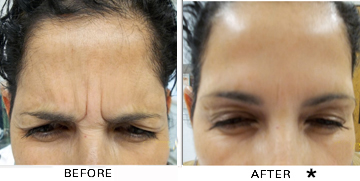 Botox® Wheeling - Look Years Younger   Rejuvenation Center