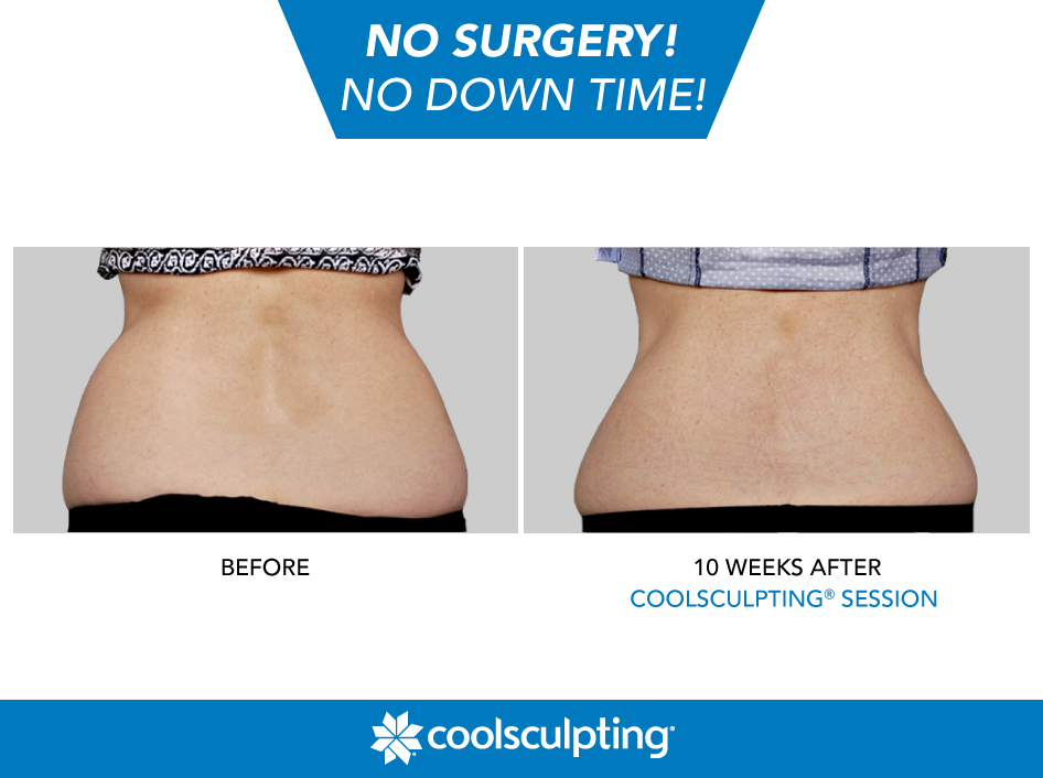 Coolsculpting Love Handles Pic