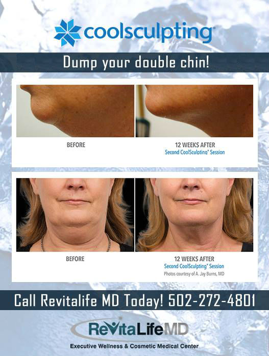 coolsculpting-double-chin-fbNO CLAIM