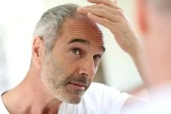 reverse-hair-loss.1