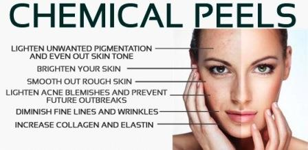 chemical-peels.1
