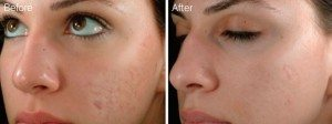 microneedling-before-after-300x112.1